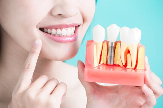 Zahnimplantate einfach reinigen mit der emmi-dent Ultraschallzahnbürste